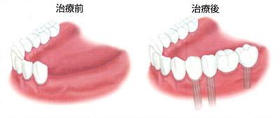 碧南市 歯医者 インプラント 歯周病 入れ歯